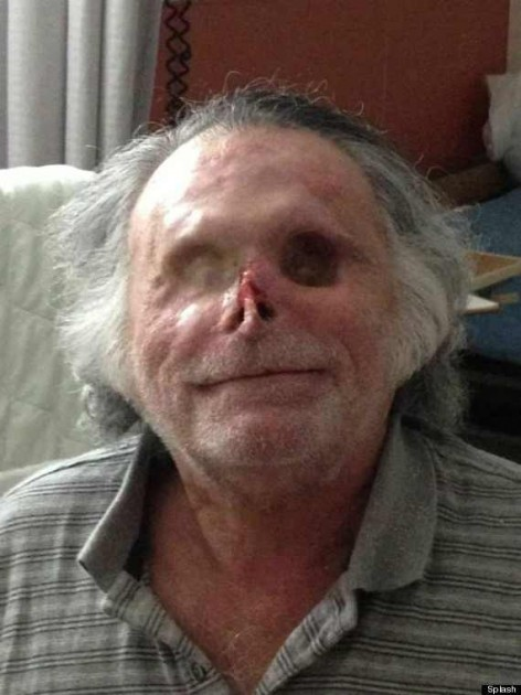 Another Miami Zombie Cannibal Attack; Man On Bath Salts