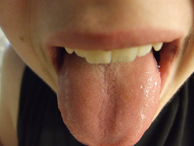 Is Your Tongue Speaking to You?